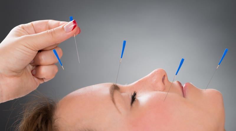 3 akupunktuuripunkti näo noorendamiseks